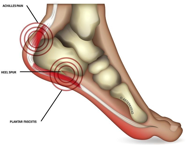 Heel pain – Silverman Podiatry